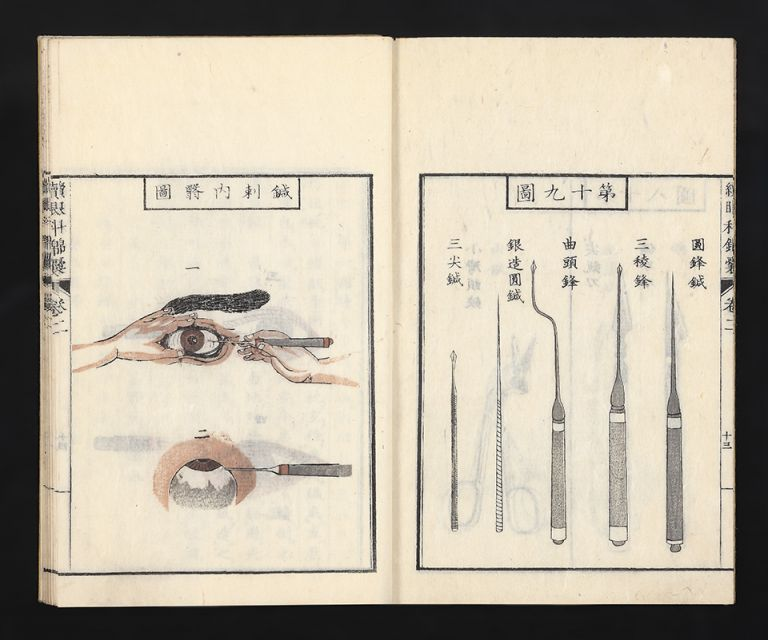 Ganka kinno [trans.: Causes, Diagnoses, and Treatments of Eye Diseases]. Fuitsu HONJO.