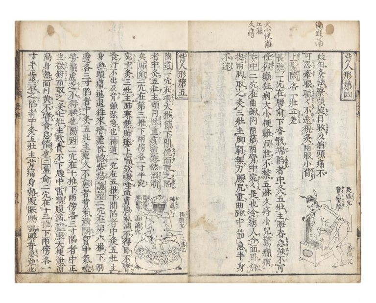 Shinkan Kotei meido kyukyo [trans.: The Yellow Emperor's Canon of Moxibustion]. Guifang DOU, trans., proofreader.
