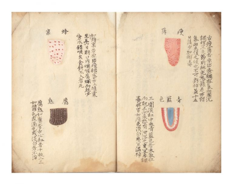 Manuscript on paper, 14 folding leaves. TONGUE, CHINESE LIP DIAGNOSIS.