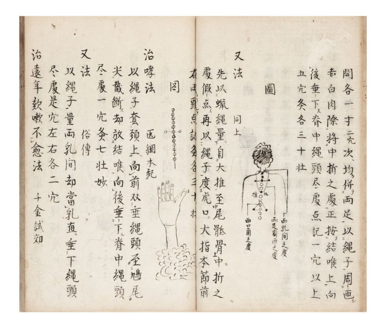 "Manuscript on paper, entitled in manuscript on title label on upper cover & on first leaf: ""Kyuji hizoku den"" [""Acupuncture Treatments Passed on from Many Sources""]. ACUPUNCTURE: A. COLLECTION OF TEXTS."