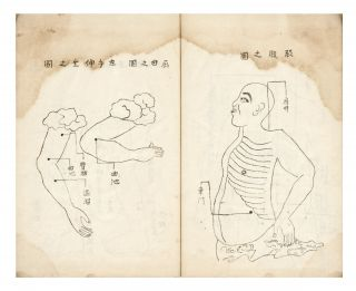 """Manuscript on paper, entitled on label of upper cover, repeated on first leaf: """"Kagawa kyuten zukai"""" [""""Kagawa-style Placement of Moxa, illustrated & described. Complete""""]."""