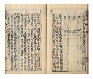From label on upper cover]: Ginkai seibi; [from title-page]: Naifu hiden ganka ginkai seibi [in...