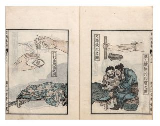 From the title-page in Vol. I]: Ganmoku [or ganbyo] shinron; [from the title-labels & first...